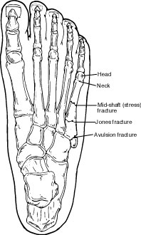 5th Metatarsal