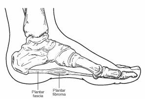 Fibroma2