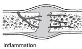boneheal-inflamation