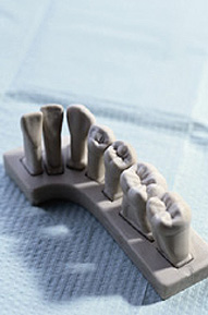 A model of our dental fillings in Valparaiso, IN