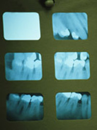 X ray for teeth