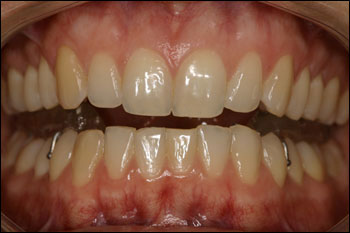 Treatment Of Tmd San Mateo Ca Orthodontist
