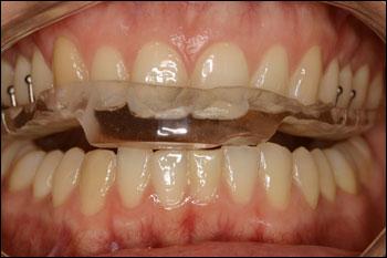 Treatment Of Tmd Tmj Dentist In Denver Co