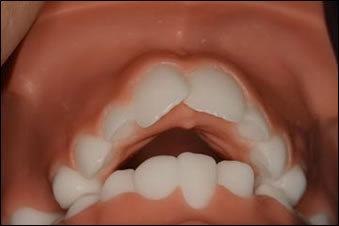 Overjet Orthodontics in Naperville, IL